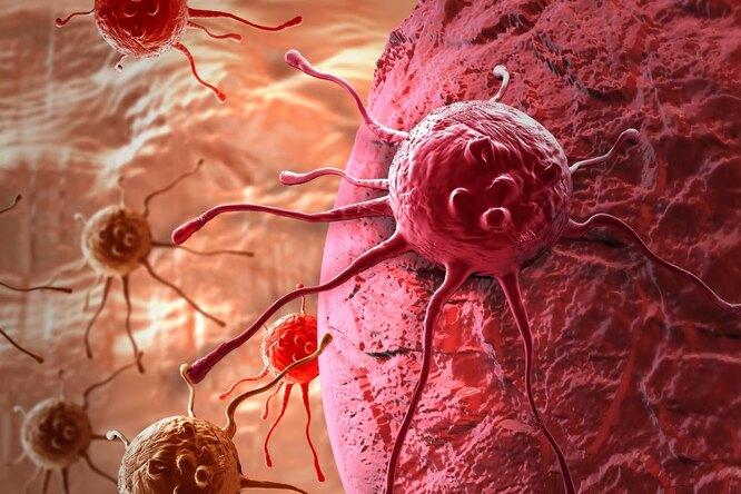 Рак: как он возникает, почему так тяжело лечится и можно ли не допустить его развития?