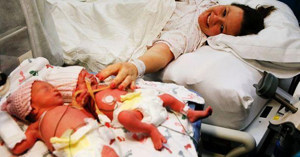 Помните этих близнецов, которые держались за руки при рождении? Посмотрите на них сегодня!