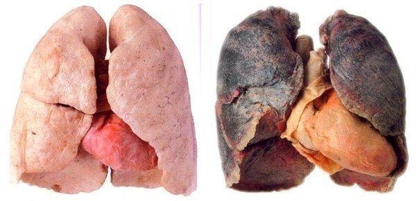 Как очистить легкие после курения