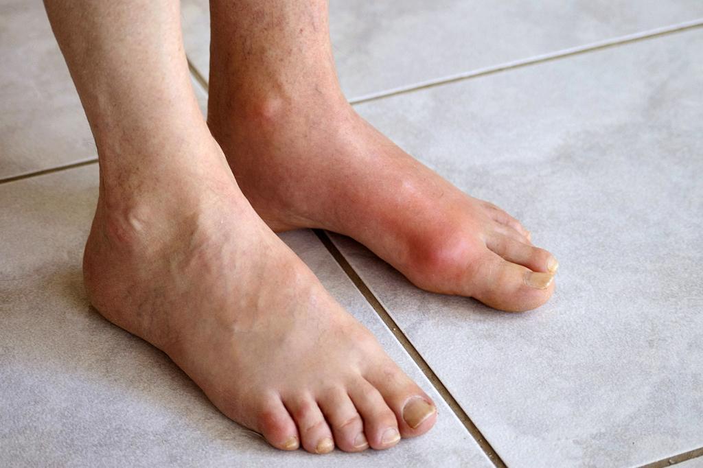 Артроз пальца руки лечение врач какому обращаться