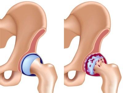 Изображение - Заболевания тазобедренного сустава у мужчин original