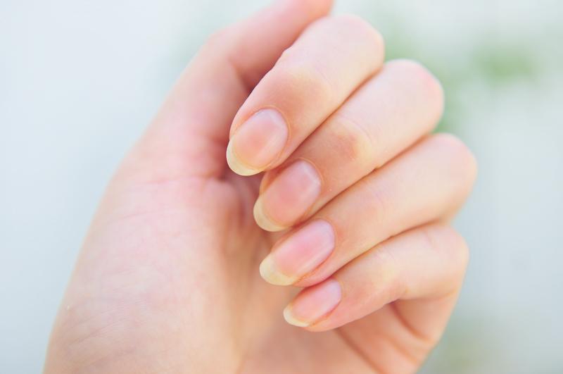 Спасите мои ногти: эффективн…