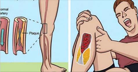 7 предупреждающих признаков того, что у вас заблокированные артерии