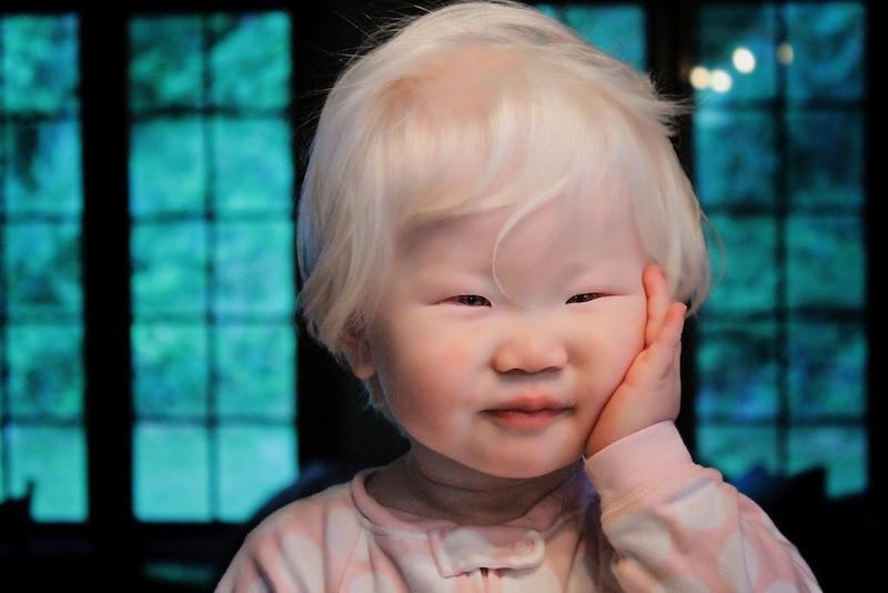 18. Маленький азиат-альбинос. планета земля, удивительные фотографии, человек