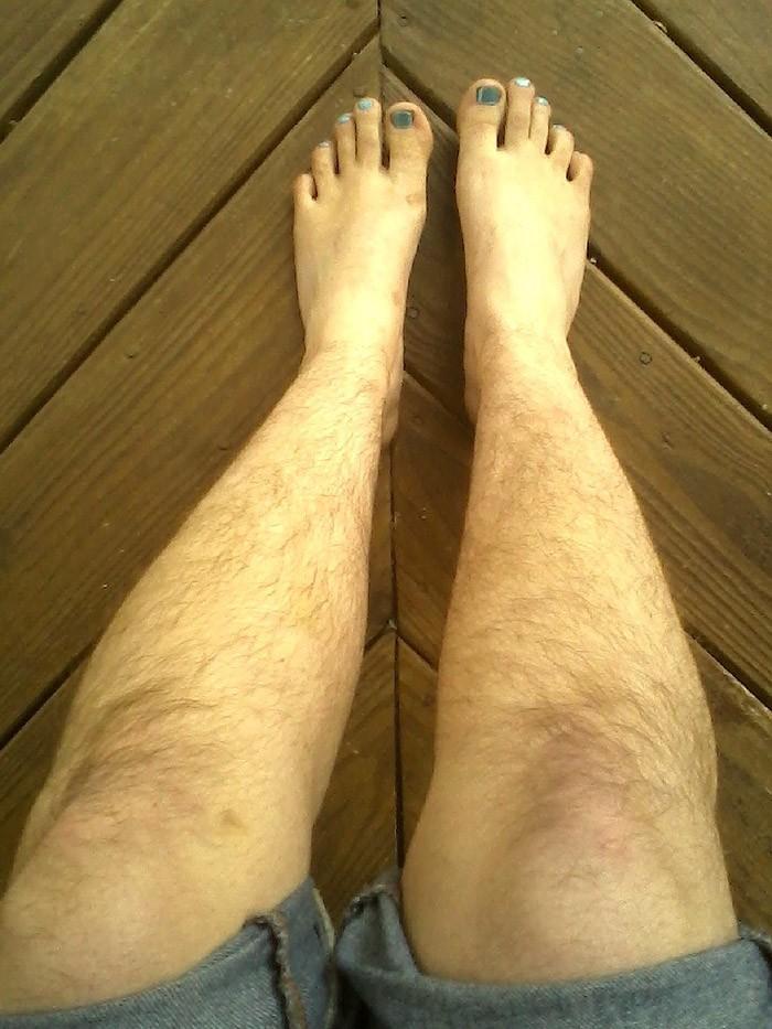 фото женских волосатых ног они лежат