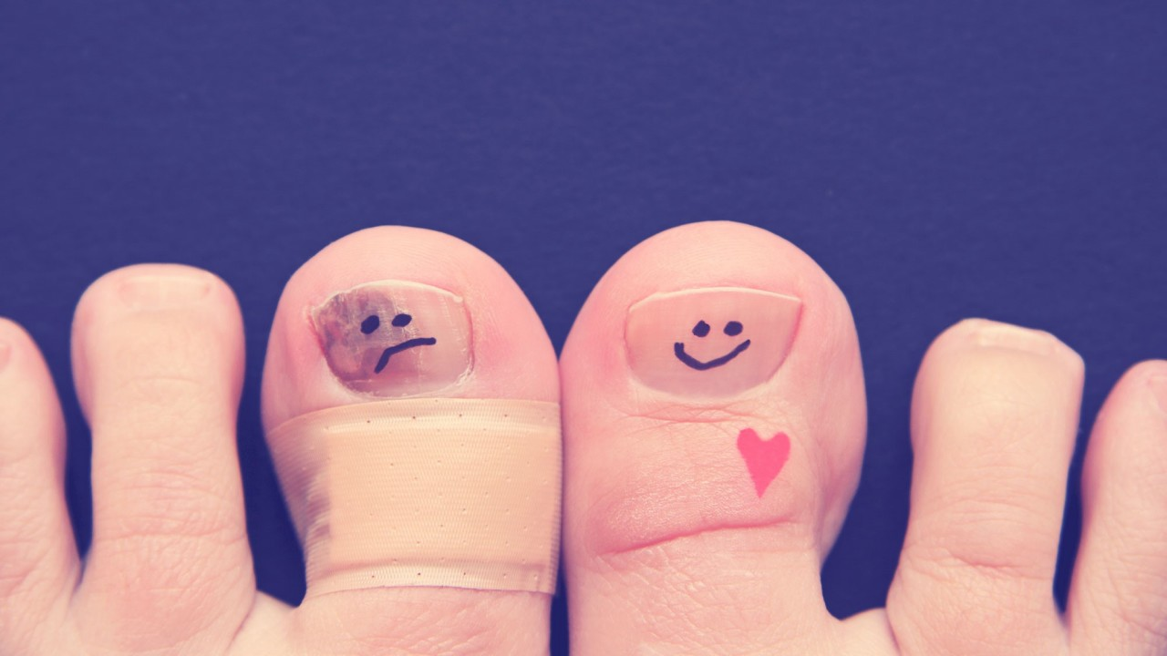 Как победить грибок ногтей