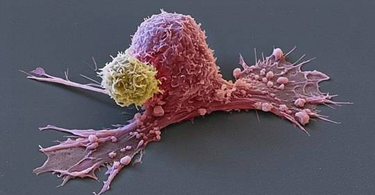 Раковые клетки умирают, когд…