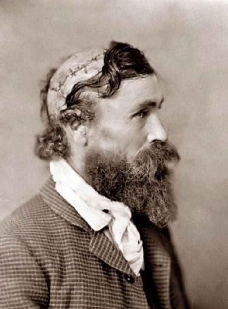 Роберт МакГи был скальпирован индейцами сиу в 13-летнем возрасте. Фото сделано спустя 25 лет в 1890 г. история, картинки, фото