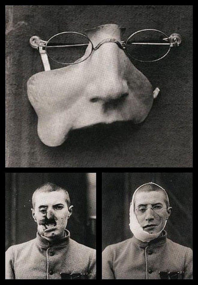 Лицевой протез для раненого солдата Первой мировой история, картинки, фото