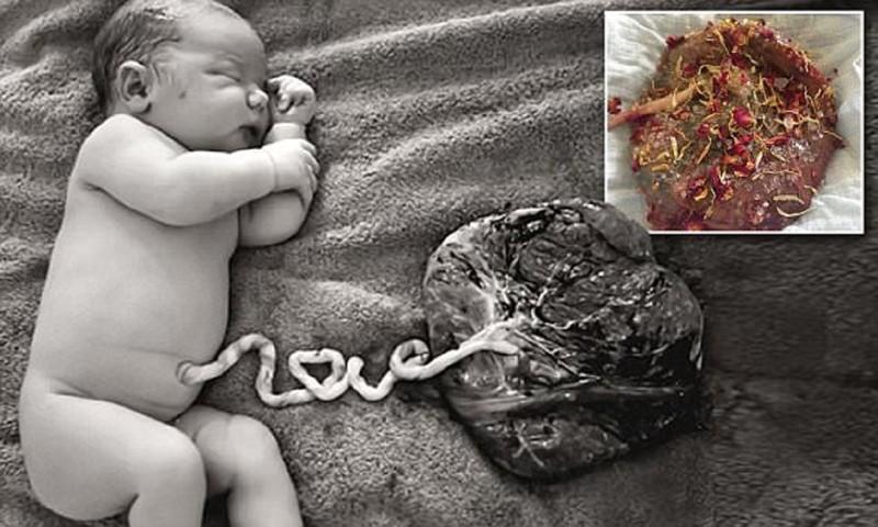 Лотосовые роды - новая мода, смертельно опасная для младенцев! лотосовые роды,мода,опасно для жизни,роды