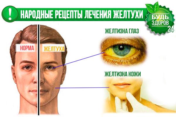 Народные методы лечения желтухи