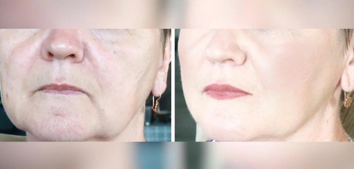 Как омолодить лицо после 50-55 лет банальными приемами