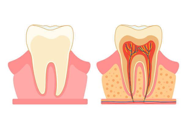 Токсичный зуб: Как можно заболеть из-за корневого канала