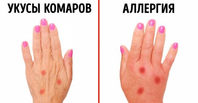 3 признака, которые помогут распознать аллергию