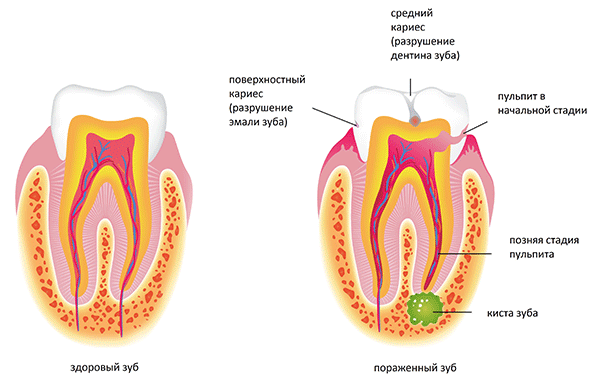 Развитие кисты зуба
