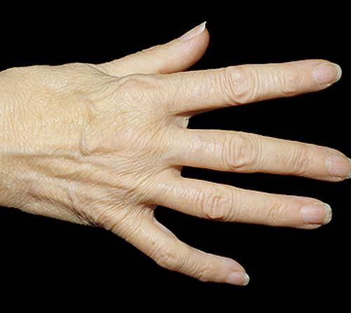 соль лечение ревматоидного артрита