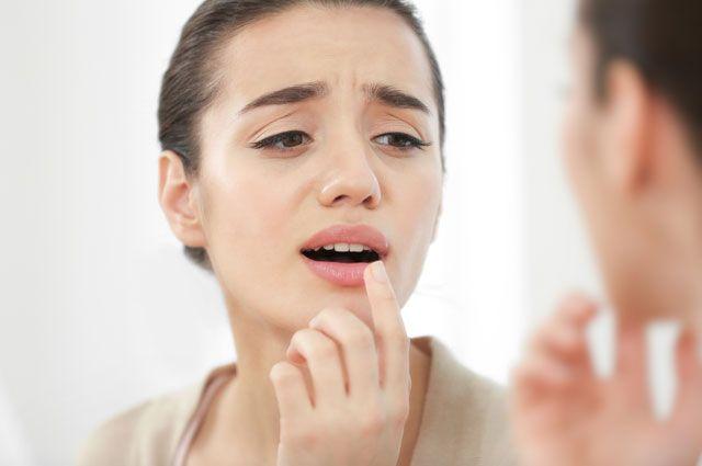 Простуда на губах: как не заразиться и надо ли лечить герпес?