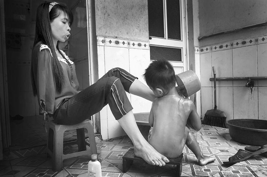 После войны: Вьетнамка, родившаяся без рук, живет нормальной жизнью и заботится о племяннике