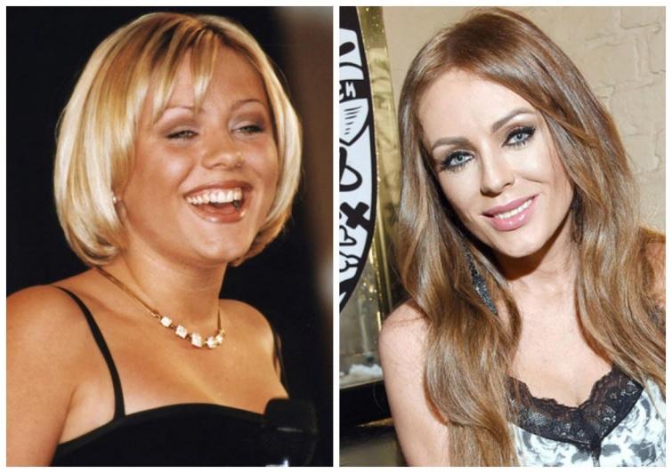 Российские знаменитости до и после пластики