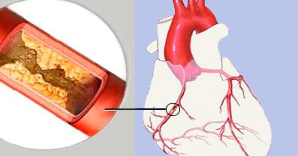 5 знаков заблокированных артерий