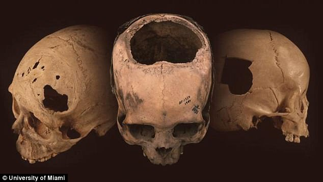 В древнем Перу операции по т…