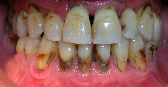 Когда вы увидите этот метод, вы будете сердиться на своего стоматолога за то, что он скрыл это. Вы удалите зубной камень за 2 дня