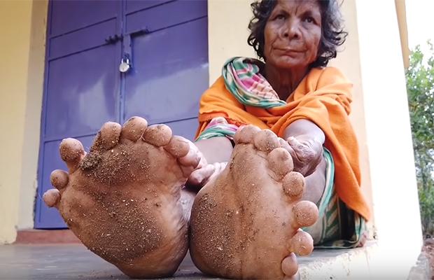 Женщина с 31 пальцем Кумари, рекордов, руках, состраданием, врожденной, результат, внешний, необычный, поскольку, любовью, аномалииИмя, относиться, следует, колдунья, населению, объясняя, работу, просветительскую, анатомической, издание
