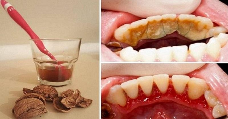 Вот как избавиться от зубного камня при помощи одного простого средства