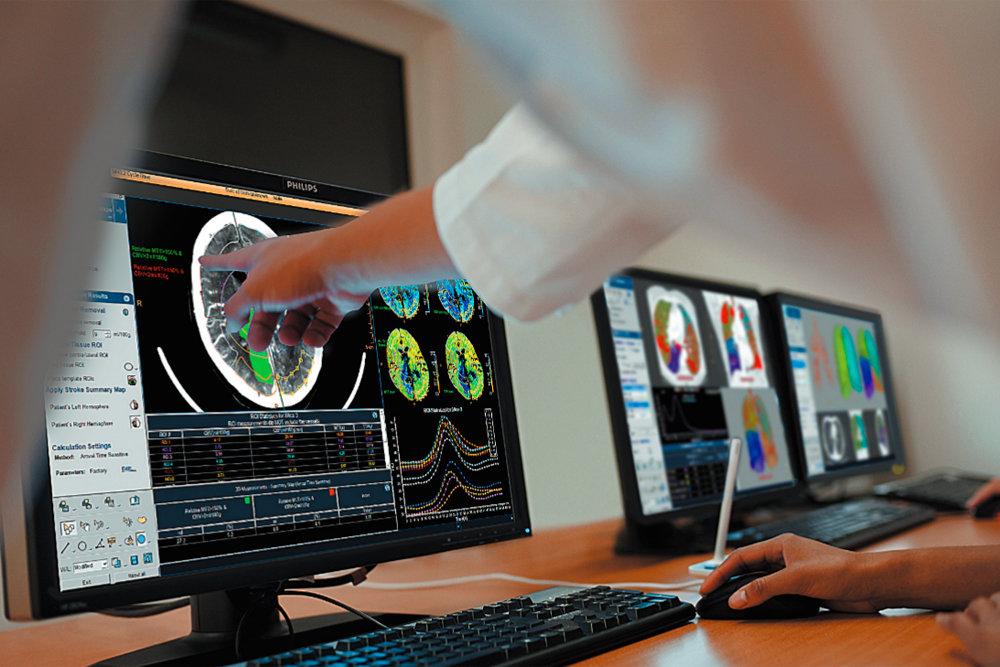 Искусственный интеллект полностью изменит системы здравоохранения
