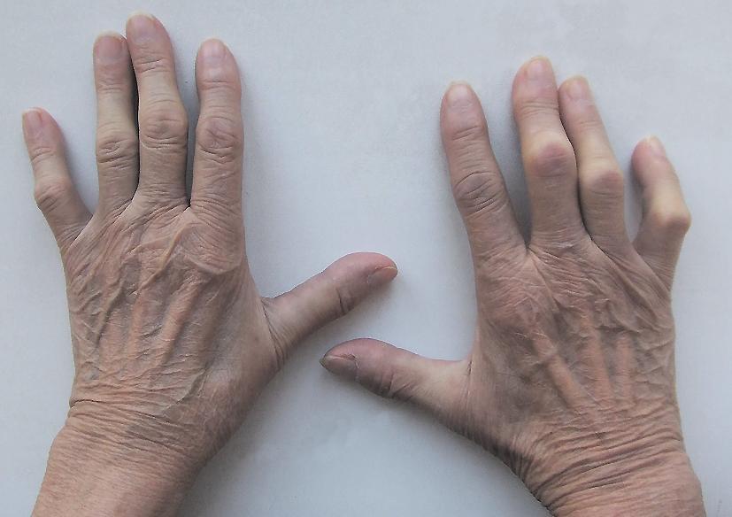 Подагра на руках симптомы диагностика и лечение