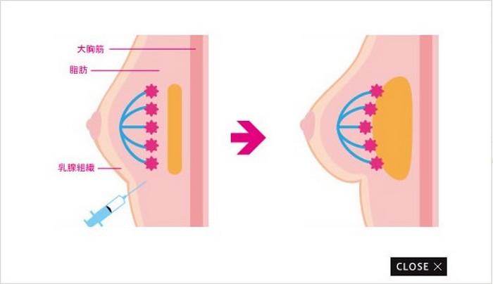 В Японии набирает популярность услуга увеличения груди на сутки