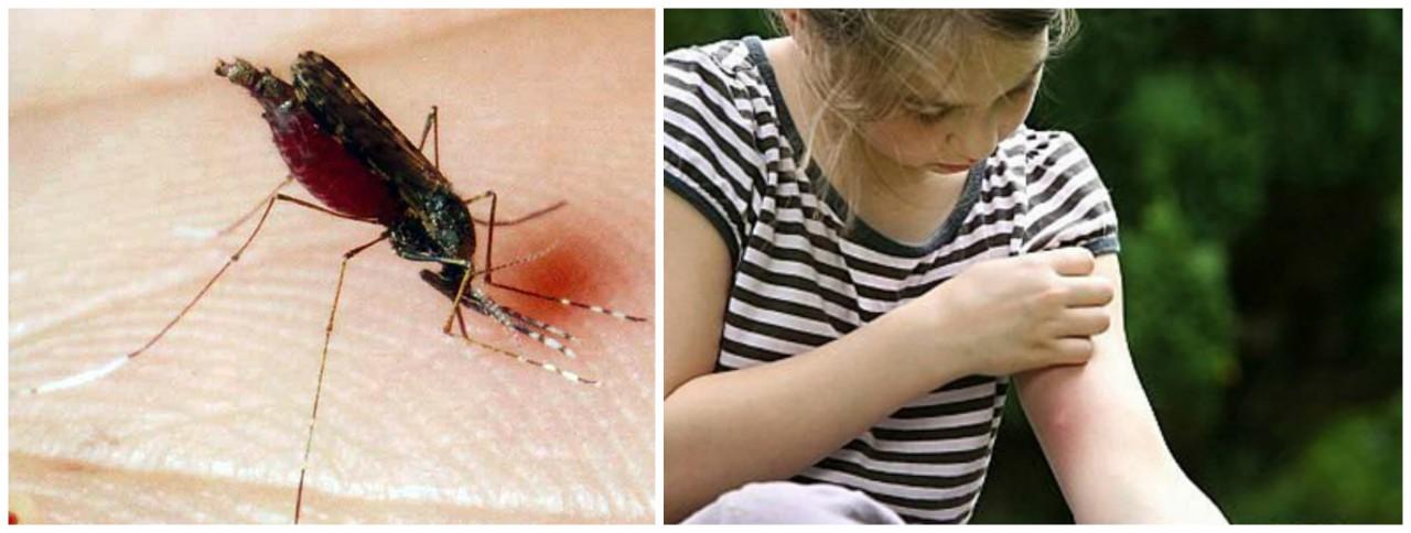 Безопасное средство от комар…
