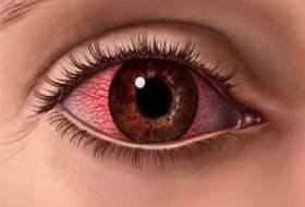 Лечим коньюктивит глаз в дом…
