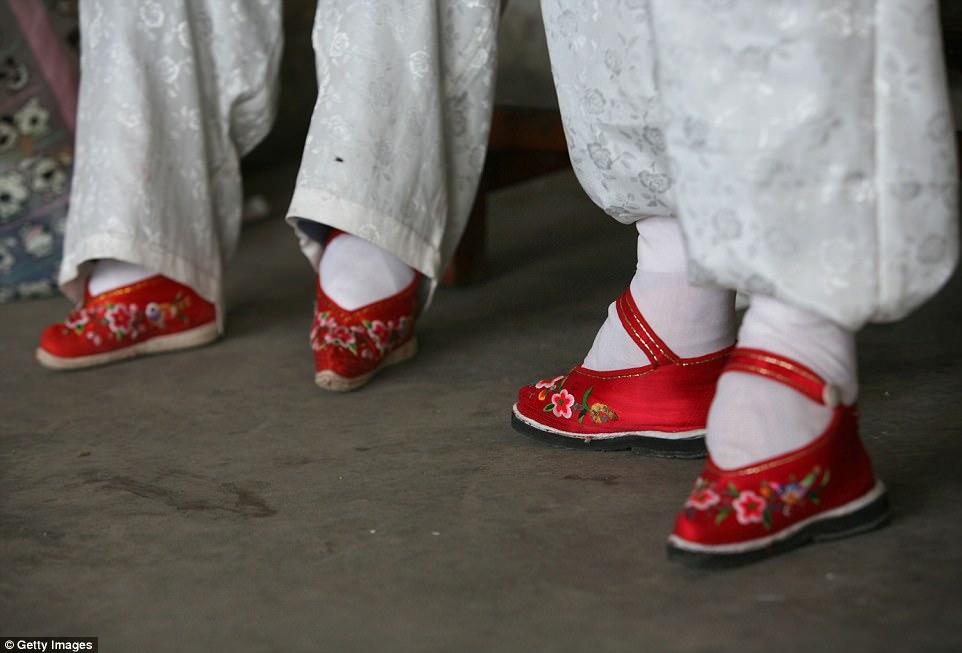В деревне «Связанные ноги» живут последние китаянки, страдающие от древней жестокой традиции