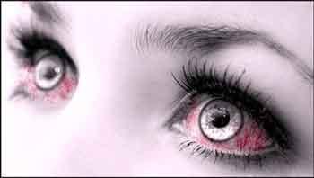 Если глаза покраснели. Лечение народными средствами