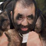 Шокирующие мутации у людей. Фото