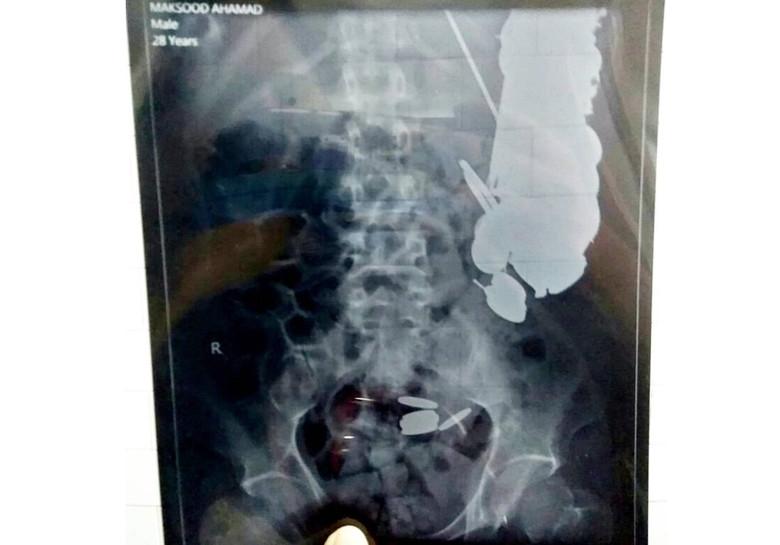 Хирурги вытащили из мужчины …