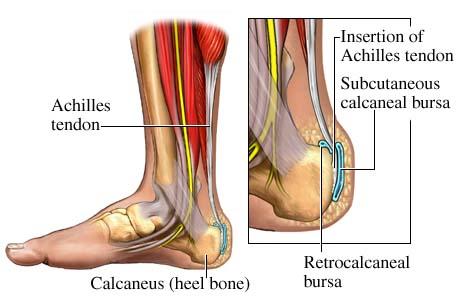 achilles_tendonites
