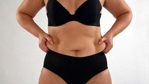 """10 причин больших животов (кроме беременности): """"сама худая, а живот торчит"""""""