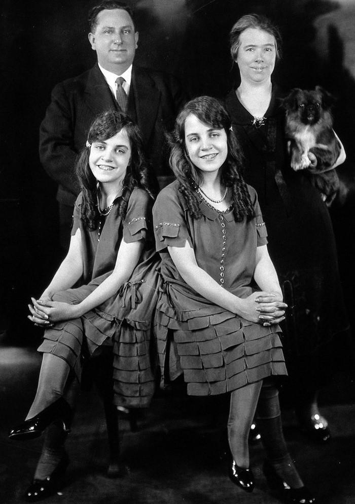 В 1920-х сиамские близнецы Х…