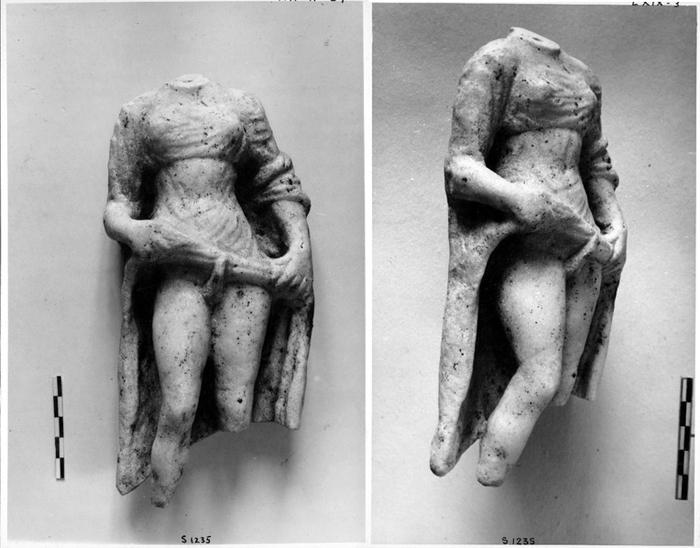 Фото половых органов гермафродитов