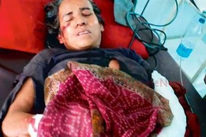 Женщина из Индии победила в схватке с леопардом