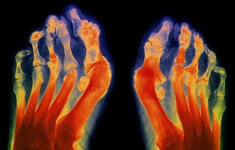 заговор от артрита
