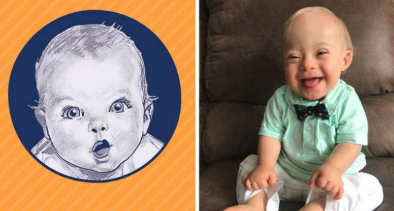 Малыш с синдромом Дауна покорил Gerber своей улыбкой и стал лицом компании детского питания