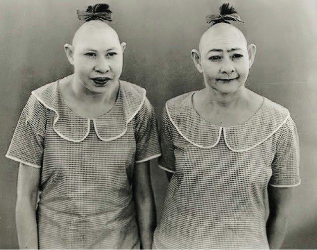Они зарабатывали на своем уродстве еще до того, как это стало мейстримом исторические снимки, странности, страшно, фото, цирк уродов