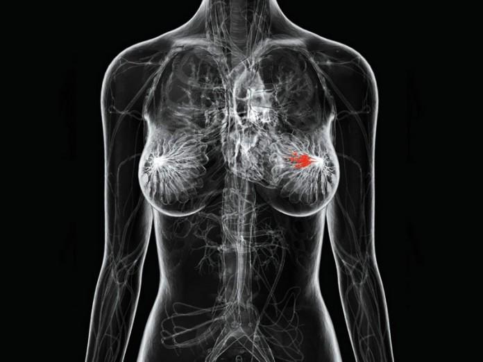 Основные причины рака груди, о которых вам стоит знать