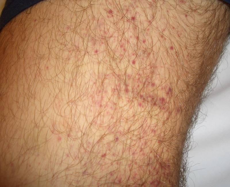 Картинки по запросу red pin prick rash on legs