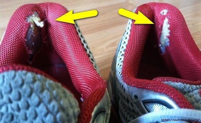 Мастер-класс по ремонту обуви, которая рвется на задниках!