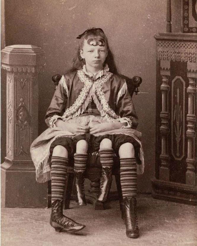 Четвероногая Миртл Корбин в 19 лет вышла замуж за доктора по имени Клайнтон Бикнелл и родила четырех дочерей и сына исторические снимки, странности, страшно, фото, цирк уродов