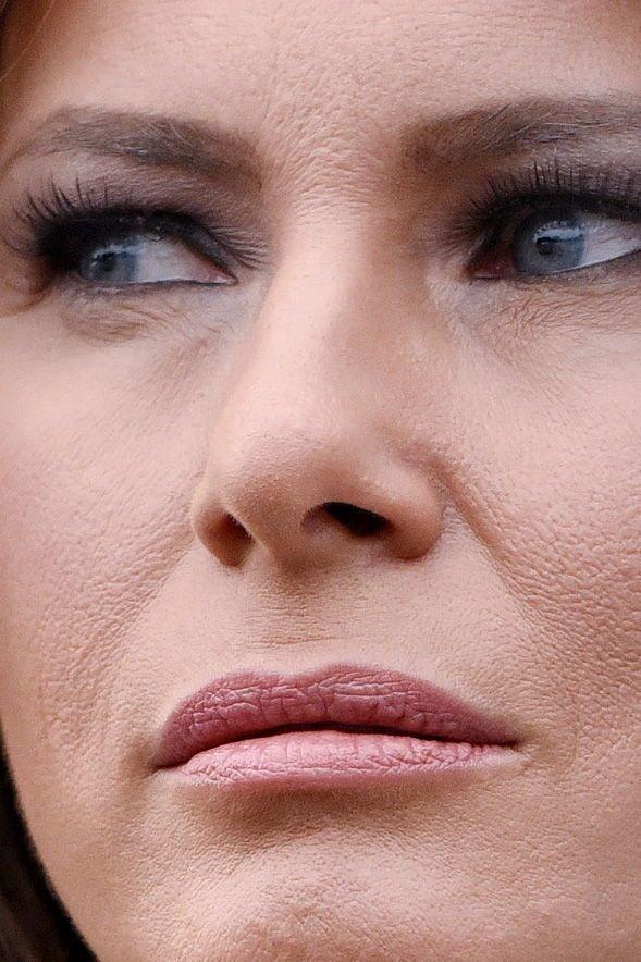 10 знаменитостей крупным планом: пластика, акне и неудачный макияж